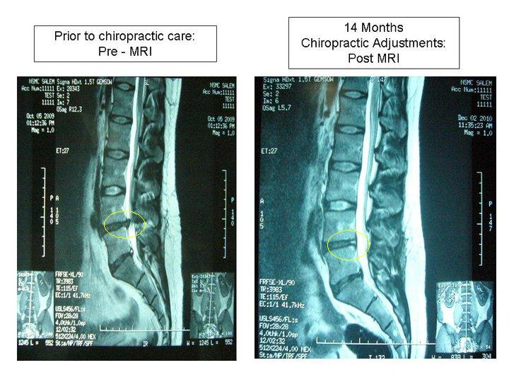 Pre and Post MRI after Chiropractic with circles